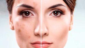 Женщина с пигментацией до и после